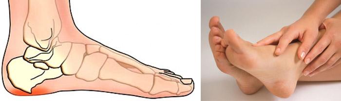 Что делать если болит стопа после ходьбы 140