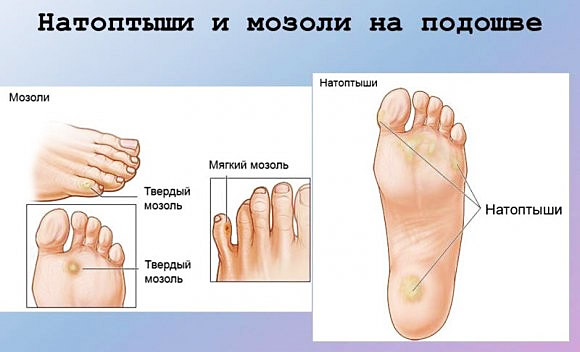 Болезненные уплотнения на подошве и пальцах