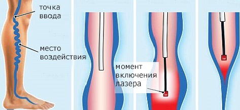 Воздействие лазера при варикозе