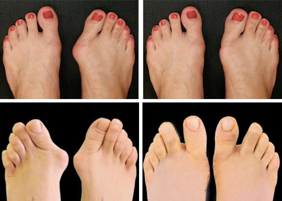 Накладка на палец ноги от косточки
