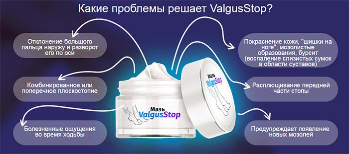 Какие проблемы устраняет ВалгусСтоп