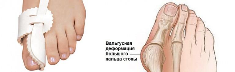 тазобедренные суставы и вальгусные стопы