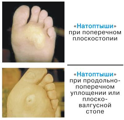 Образования на ногах