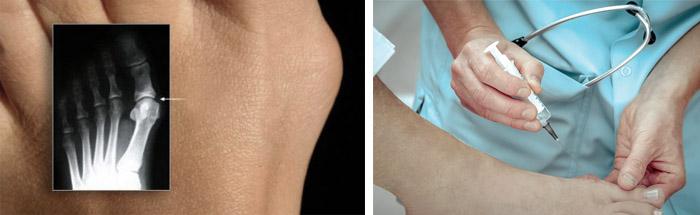 Операция на косточке ноги