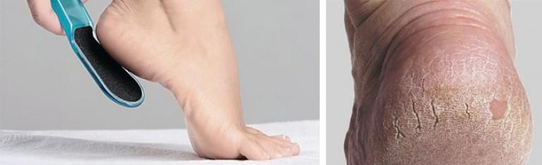 Чем лечить глубокие трещины на пятках в домашних условиях