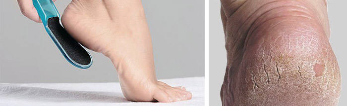 Повреждение кожи на ступнях