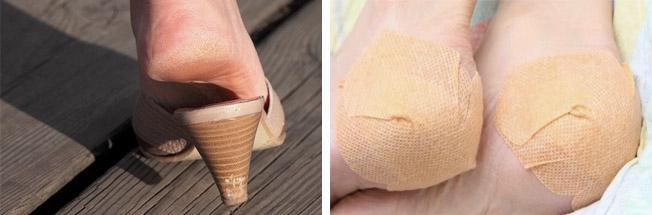 Повреждения кожи на ногах