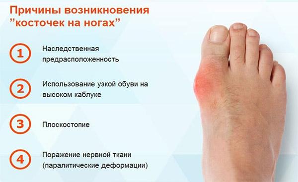 Отзывы врачей о фиксаторы для пальца ру