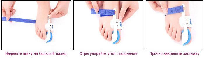Лечение в домашних условиях косточки на большом пальце ноги
