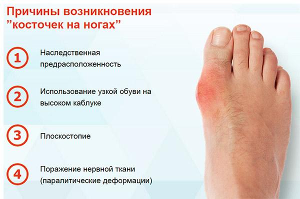 Причины деформации косточки