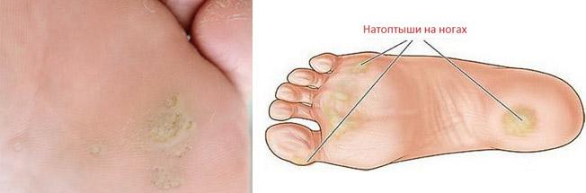 Средства от повреждений кожи