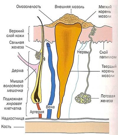 Строение стержневой мозоли