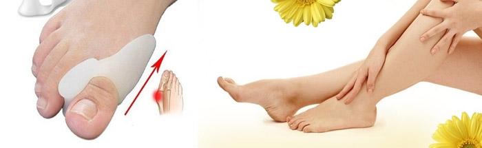 Что собой представляет ортопедический фиксатор для коррекции косточек на ногах