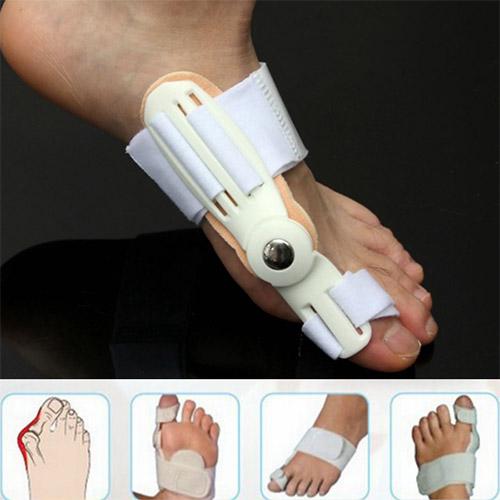 Лечение косточки на большом пальце ноги ТОП методов
