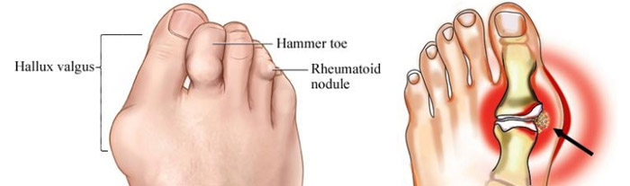 Болит косточка на ноге около мизинца