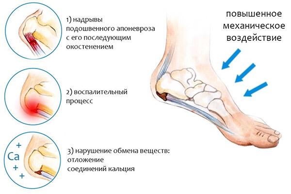 Боль в области ступни