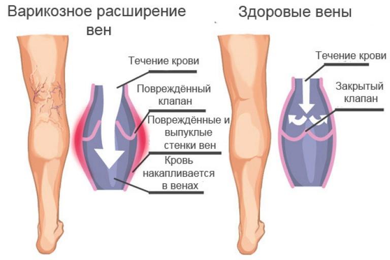 Схема лечения варикозного расширения вен