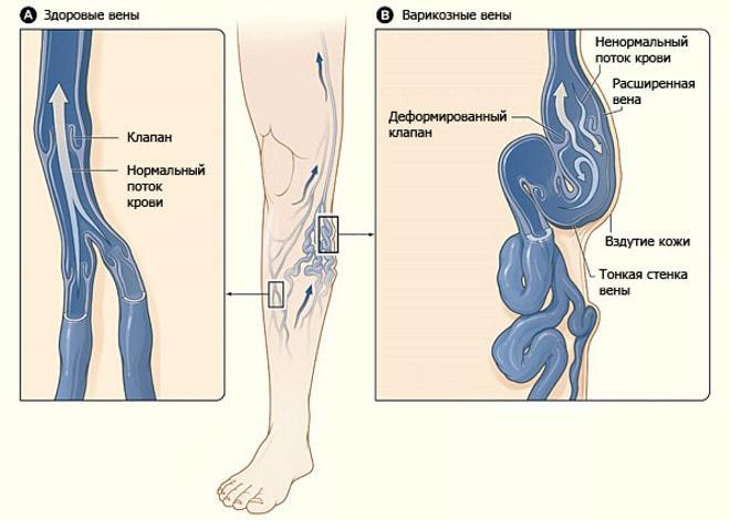 Как лечить тромбофлебит поверхностных вен