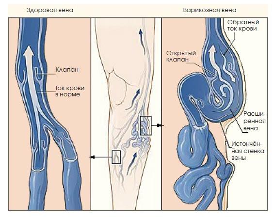 Хронический тромбофлебит глубоких вен нижних конечностей