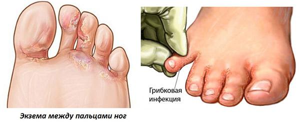 Возможные заболевания