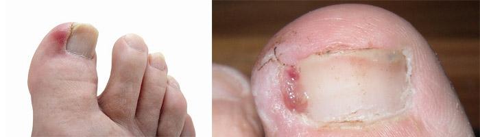 Гной около ногтя на ноге