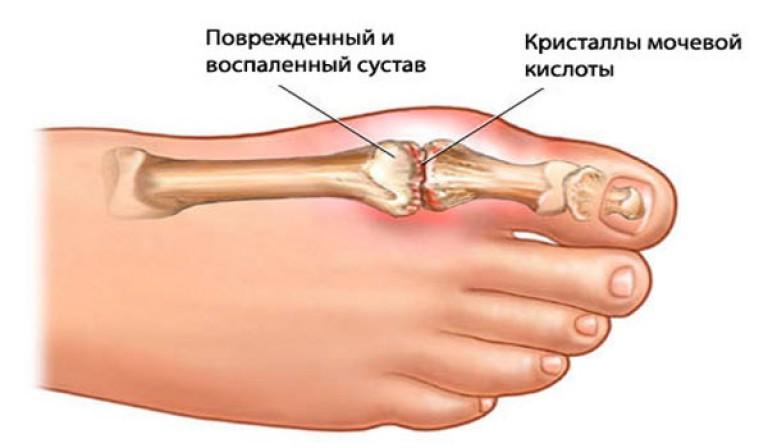 сустав на ноге палец большой на