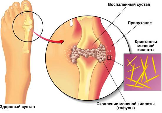 народные средства от артрита и артроза коленного сустава