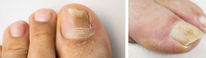 Как быстро вылечить грибок кожи