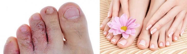 Грибок ногтей на ногах между пальцами