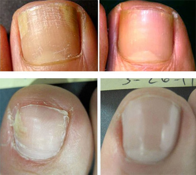 Лечение грибка ногтя запущенная форма йодом