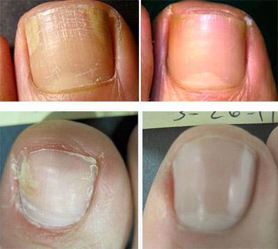 Грибок кандида на ногтях рук лечение - О грибке ногтей