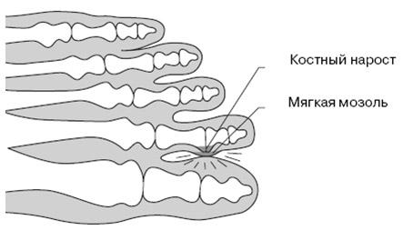 Как образуется мягкая мозоль