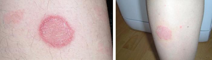 фото красное пятно на ноге