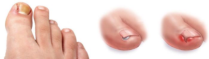 Загноился палец на ноге возле ногтя