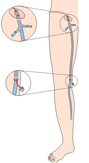 Операция сафенэктомия