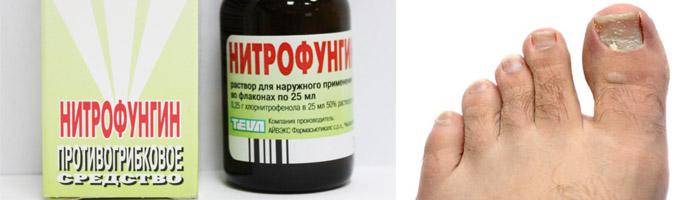 Нитрофунгин от онихомикоза