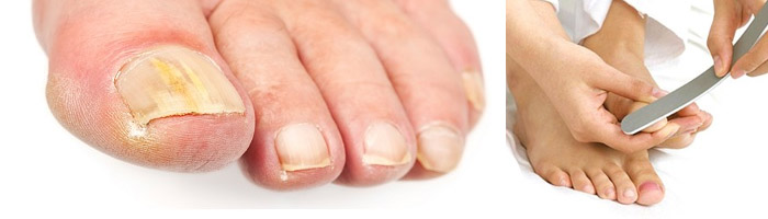 Пожелтевший ноготь на пальце