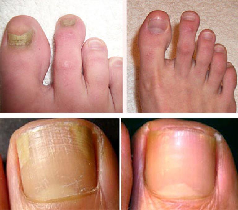 Лечить быстро грибок ногтей в домашних условиях