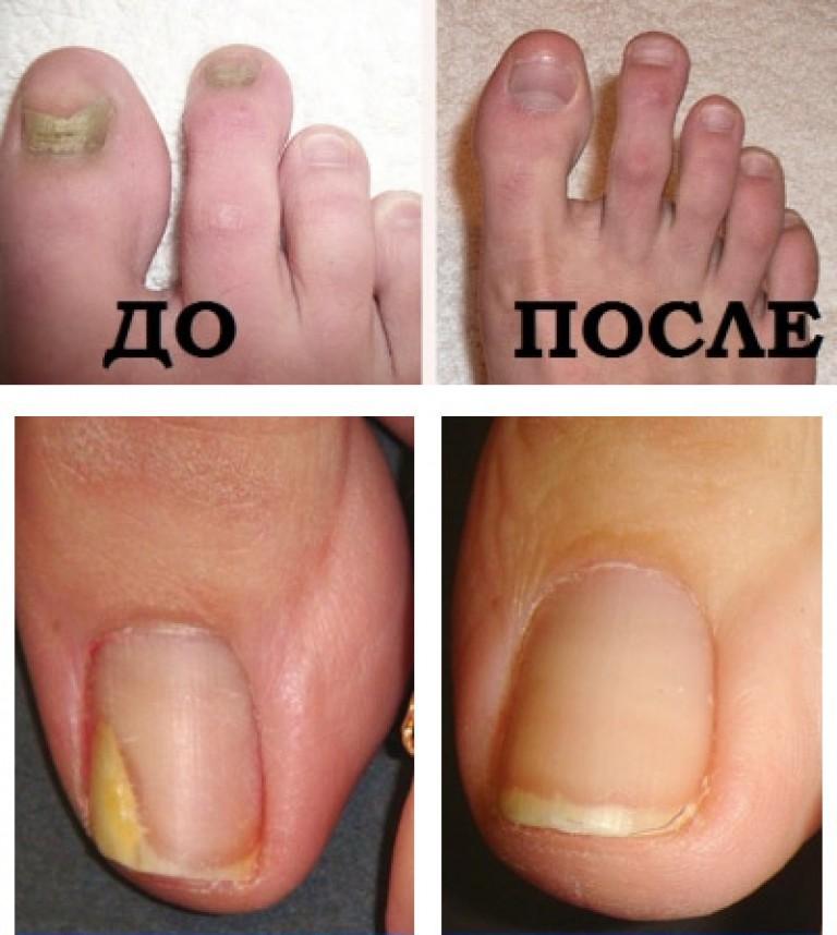 Лечение пальцев ног от грибка ногтей