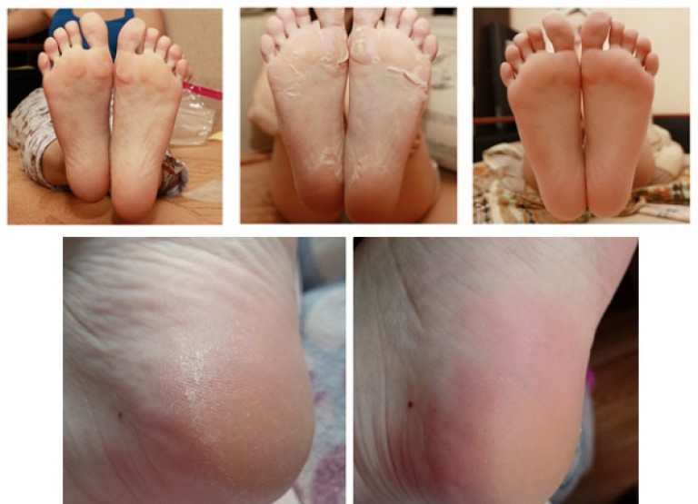 Как сделать носочки для педикюра своими руками 23