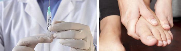 Обезболивающие при подагре на ногах: таблетки, мази и уколы ...