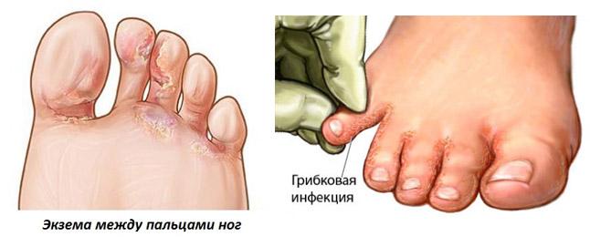Как лечить дрожжевой грибок во влагалище