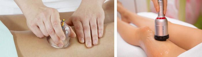 Проведение вакуумного массажа
