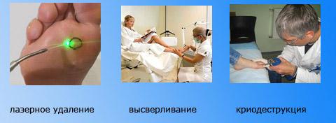 Процедуры в клиниках