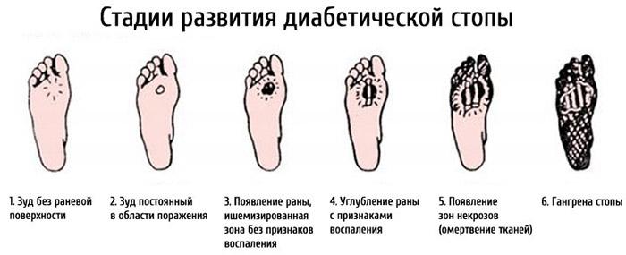 Болит стопа посередине с внутренней стороны: причины, диагностика ...
