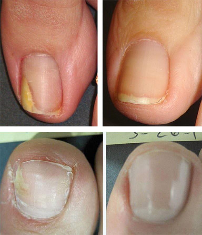 Как Вылечить Грибок Ногтей На Ногах В Домашних Условиях Быстро Уксусом