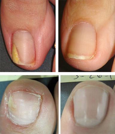 « Микостоп » от грибка препарат для ногтей и кожи