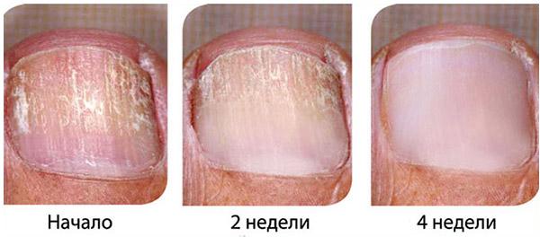 Народные рецепты при лечении грибка на ногтях ног