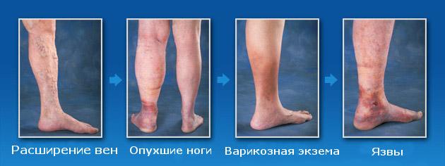 Стадии заболевания ног