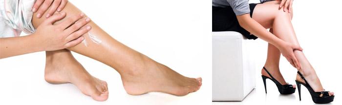 Терапия при варикозе на ногах